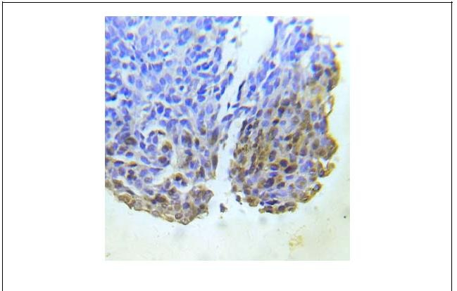 Abl1 (Ab-204) Antibody (OAEC01435) in Human lung adenocarcinoma cells using Immunohistochemistry