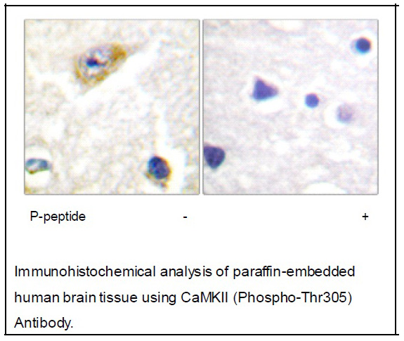CaMKII (Phospho-Thr305) Antibody (OAEC01457) in Human brain cells using Immunohistochemistry
