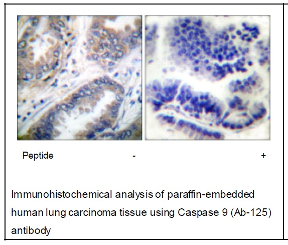 Caspase 9 (Ab-125) Antibody (OAEC01494) in Human lung carcinoma cells using Immunohistochemistry