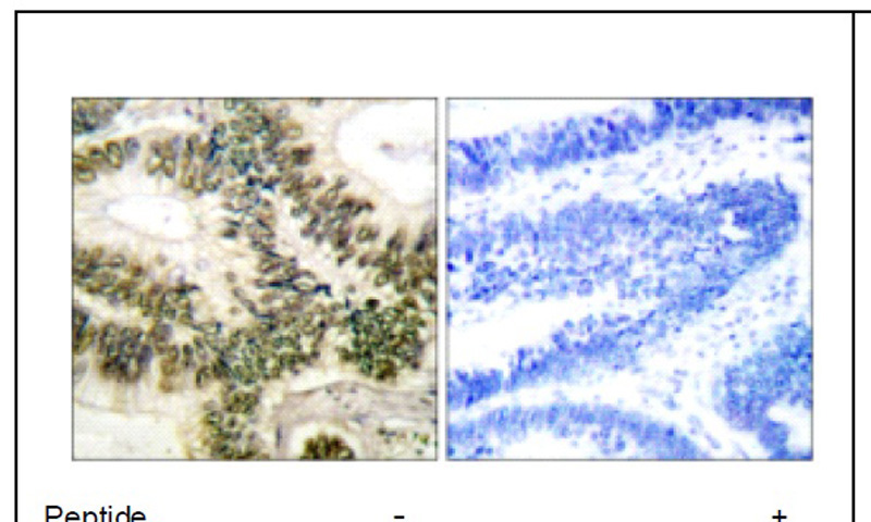 Cyclin E1 (Ab-395) Antibody (OAEC01499) in Human colon carcinoma cells using Immunohistochemistry