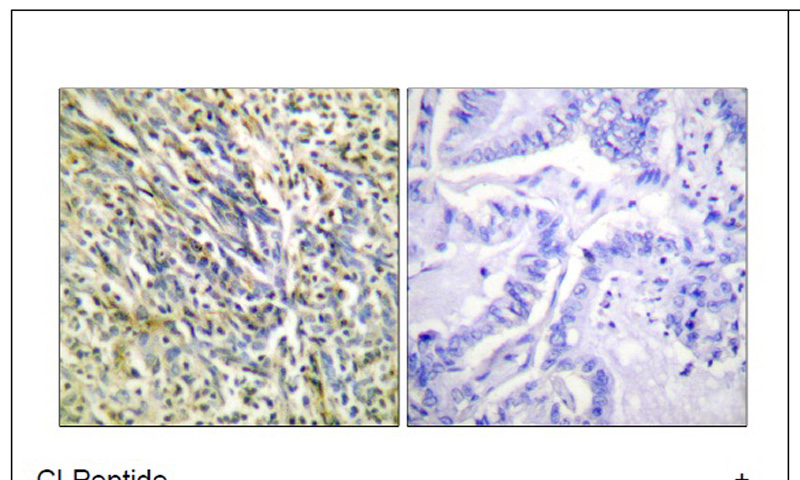 Aggrecan (Cleaved-Asp369) Antibody (OAEC01524) in Human lung carcinoma cells using Immunohistochemistry