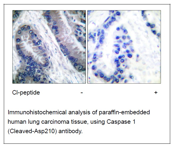 Caspase 1 (Cleaved-Asp210) Antibody (OAEC01536) in Human lung carcinoma cells using Immunohistochemistry