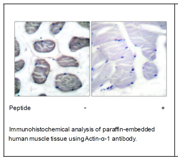 Actin-α-1 Antibody (OAEC01541) in Human muscle cells using Immunohistochemistry