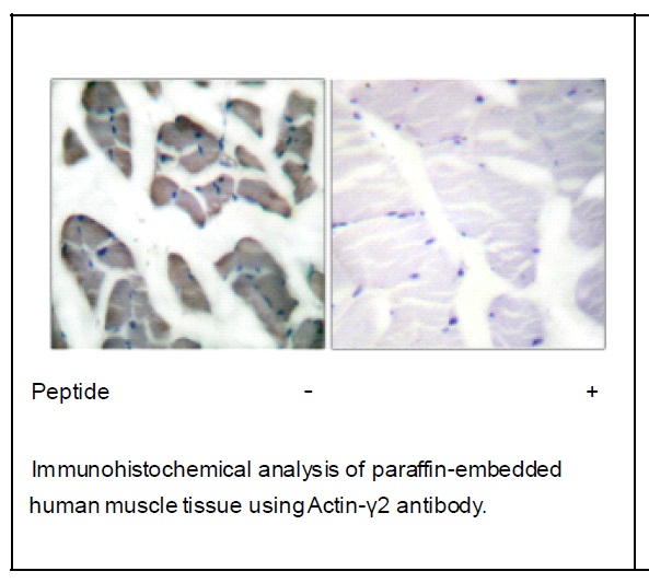 Actin-γ2 Antibody (OAEC01542) in Human muscle cells using Immunohistochemistry