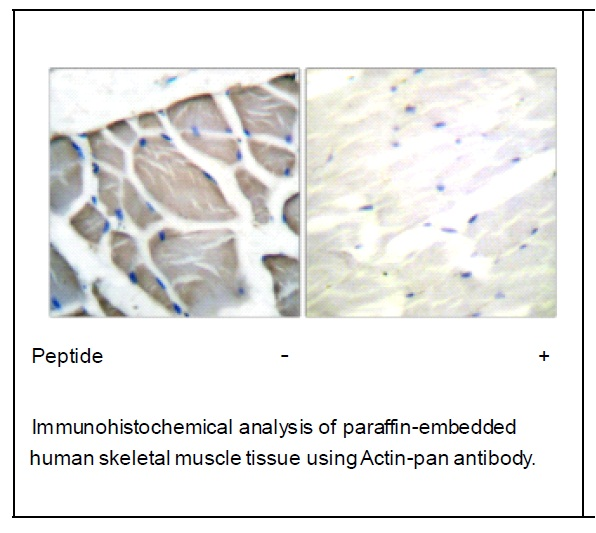 Actin-pan Antibody (OAEC01543) in Human skeletal muscle cells using Immunohistochemistry