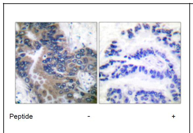 APAF-1-ALT Antibody (OAEC01549) in Human lung carcinoma cells using Immunohistochemistry
