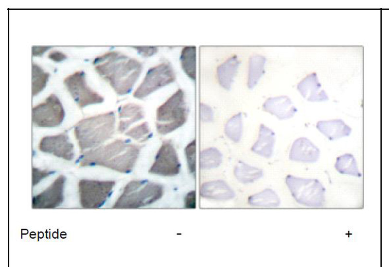 Bak Antibody (OAEC01552) in Human skeletal muscle cells using Immunohistochemistry