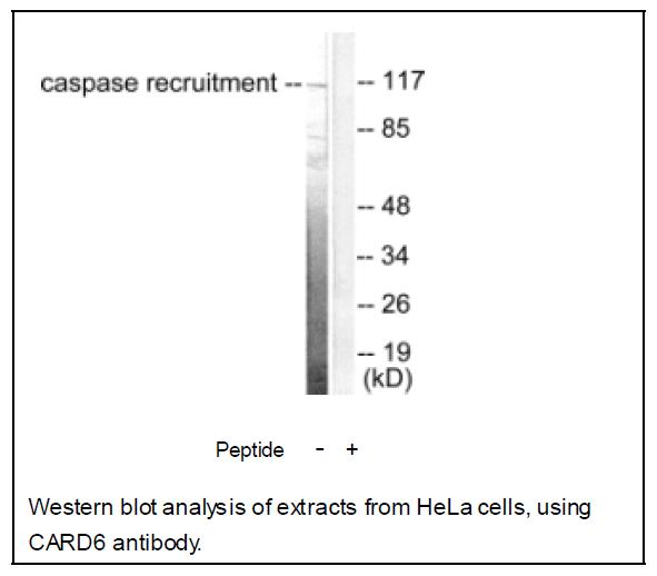 CARD6 Antibody (OAEC01557) in Human Hela cells using Western Blot