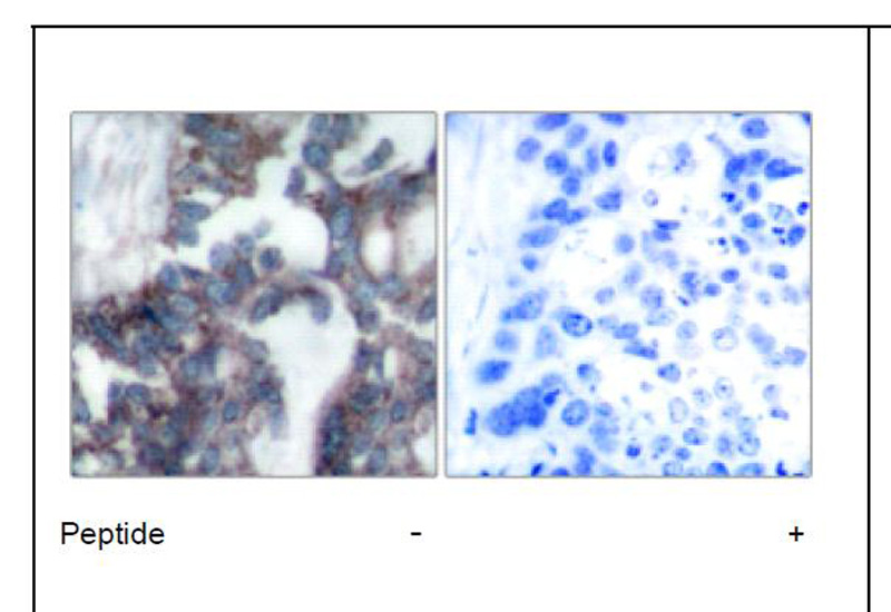 Claudin 1 Antibody (OAEC01564) in Human breast carcinoma cells using Immunohistochemistry