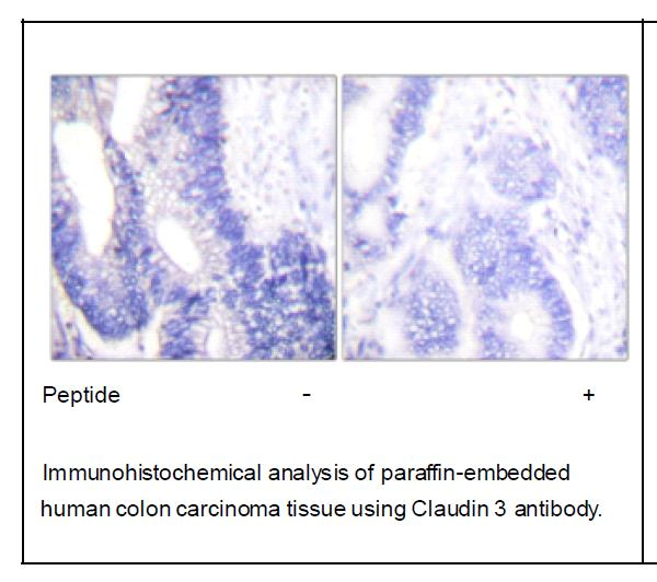 Claudin 3 Antibody (OAEC01567) in Human colon carcinoma cells using Immunohistochemistry