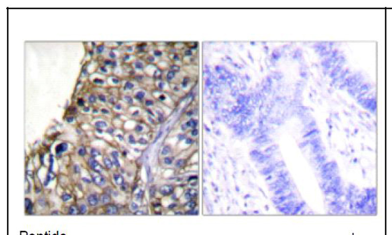 Claudin 7 Antibody (OAEC01580) in Human lung carcinoma cells using Immunohistochemistry