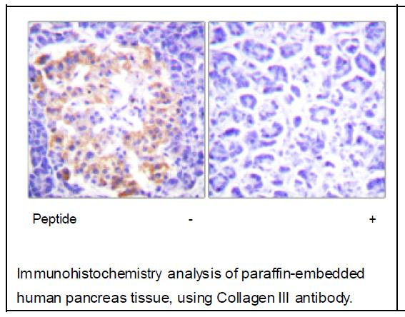 Collagen III Antibody (OAEC01585) in Human pancreas cells using Immunohistochemistry