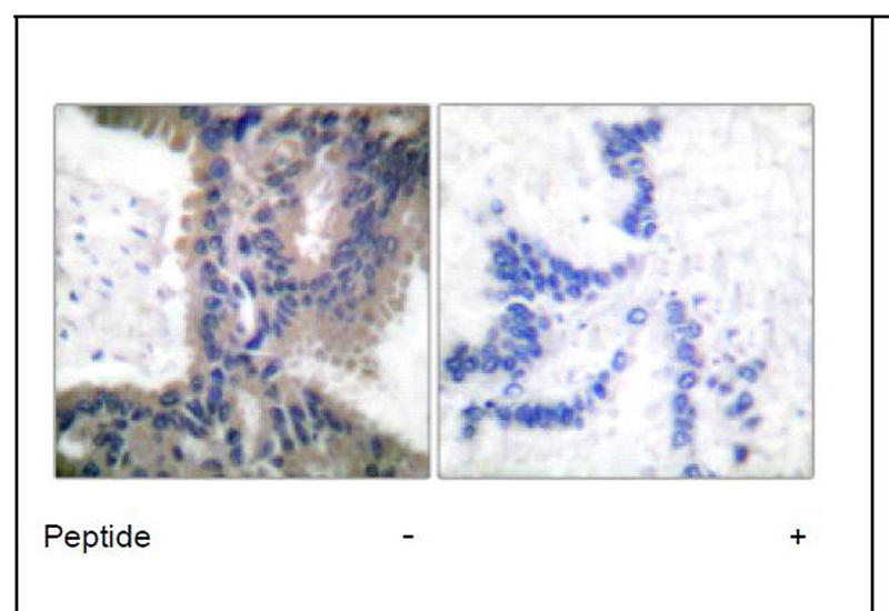 Cullin 1 Antibody (OAEC01596) in Human lung carcinoma cells using Immunohistochemistry