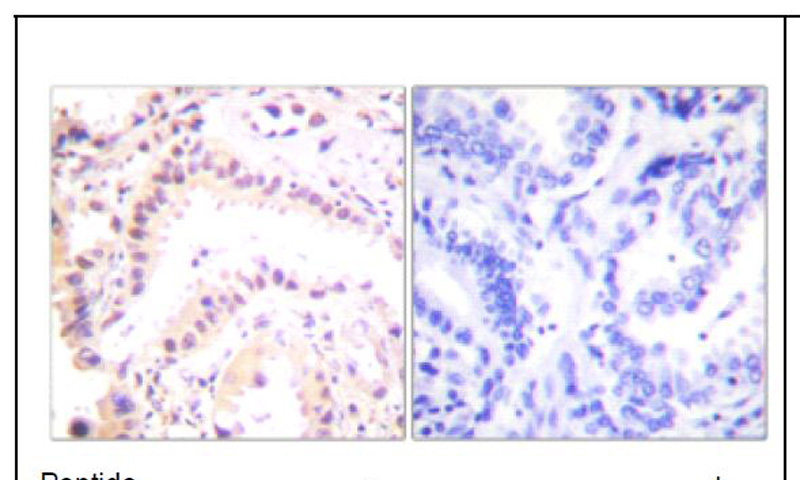 Cullin 2 Antibody (OAEC01597) in Human lung carcinoma cells using Immunohistochemistry