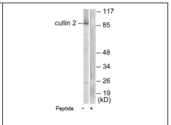 Cullin 2 Antibody (OAEC01597) in LOVO cells using Western Blot