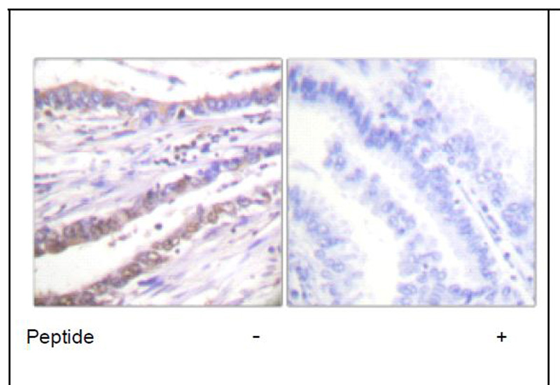 Cyclin A Antibody (OAEC01599) in Human lung carcinoma cells using Immunohistochemistry