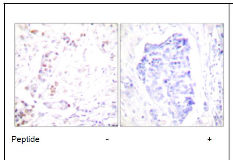 Cyclin A1 Antibody (OAEC01601) in Human breast carcinoma cells using Immunohistochemistry
