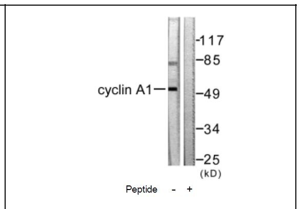 Cyclin A1 Antibody (OAEC01601) in SK-OV3 cells using Western Blot