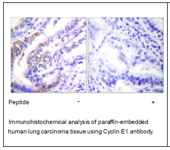 Cyclin E1 Antibody (OAEC01602) in Human lung carcinoma cells using Immunohistochemistry