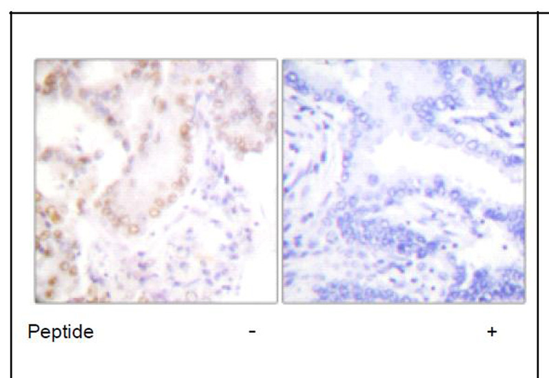 Cyclin G Antibody (OAEC01605) in Human lung carcinoma cells using Immunohistochemistry