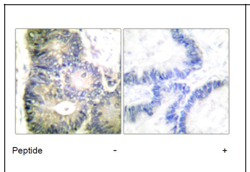 Cytochrome c Antibody (OAEC01607) in Human colon carcinoma cells using Immunohistochemistry