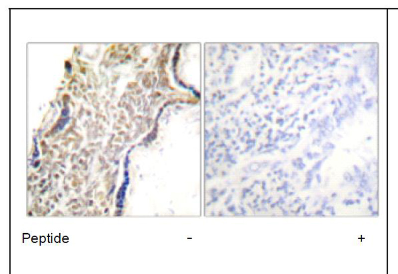 p14 ARF Antibody (OAEC01752) in Human placenta cells using Immunohistochemistry
