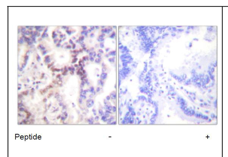 p15 INK Antibody (OAEC01753) in Human lung carcinoma cells using Immunohistochemistry