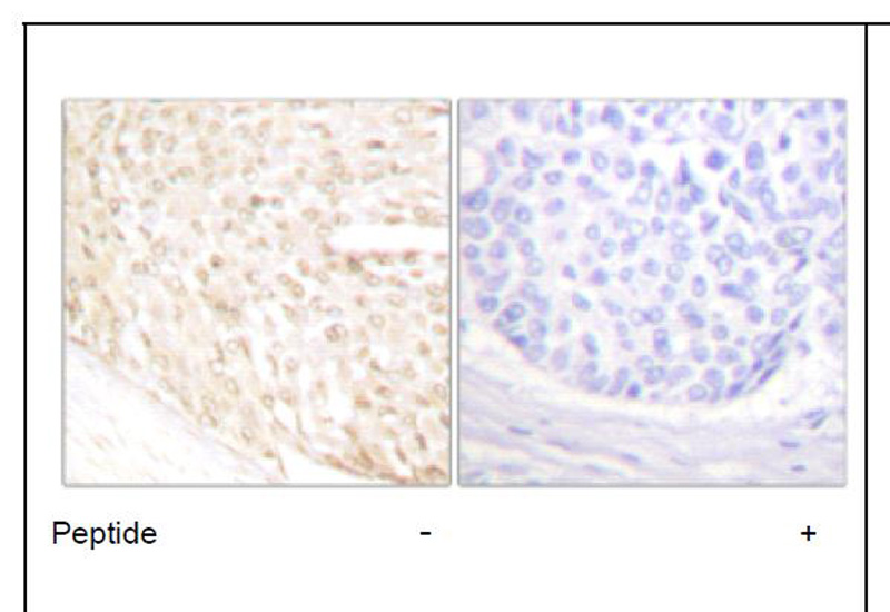 p18 INK Antibody (OAEC01754) in Human breast carcinoma cells using Immunohistochemistry
