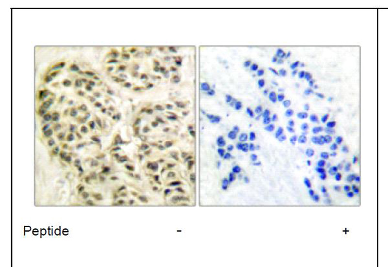 Cyclin-L1 Antibody (OAEC01761) in Human breast carcinoma cells using Immunohistochemistry