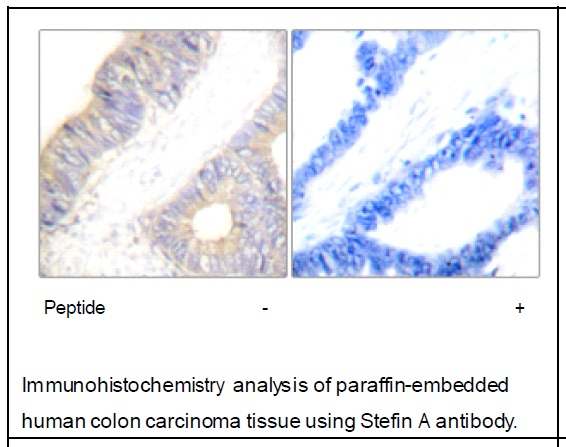 Stefin A Antibody (OAEC01803) in Human colon carcinoma cells using Immunohistochemistry