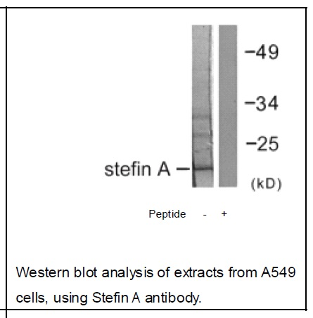 Stefin A Antibody (OAEC01803) in A549 cells using Western Blot