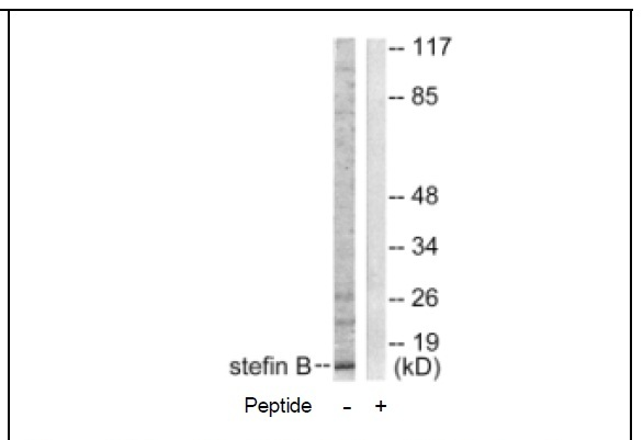 Stefin B Antibody (OAEC01805) in A549 cells using Western Blot