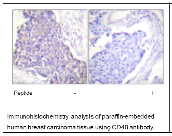 CD40 Antibody (OAEC01829) in Human breast carcinoma cells using Immunohistochemistry