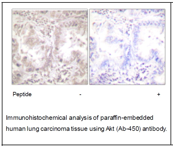Akt (Ab-450) Antibody (OAEC01891) in Human lung carcinoma cells using Immunohistochemistry