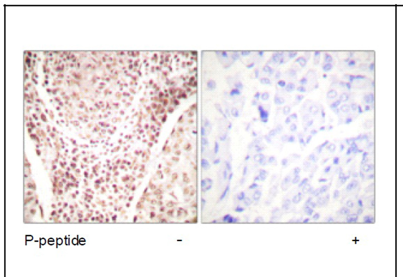 Chk2 (Phospho-Thr387) Antibody (OAEC01893) in Human breast carcinoma cells using Immunohistochemistry