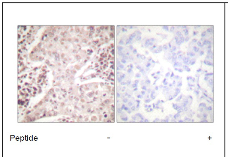 Chk2 (Ab-387) Antibody (OAEC01894) in Human breast carcinoma cells using Immunohistochemistry