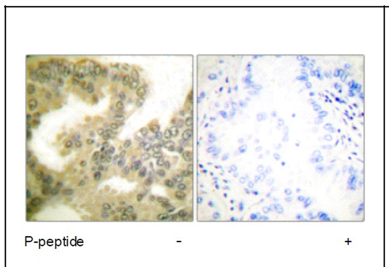 Cyclin D3 (Phospho-Thr283) Antibody (OAEC01895) in Human lung carcinoma cells using Immunohistochemistry