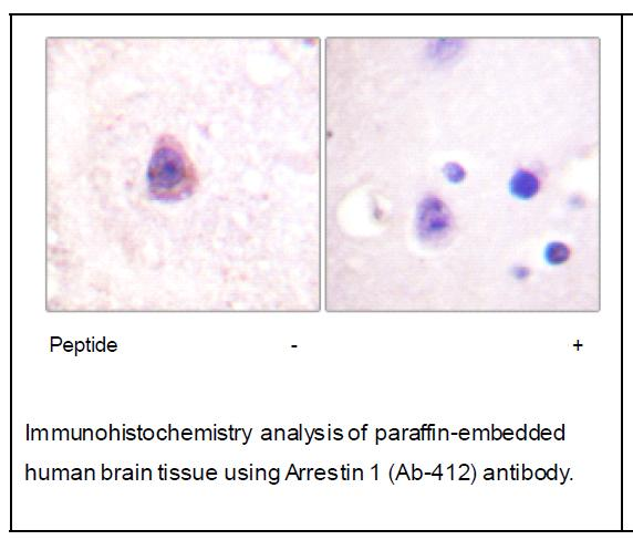 Arrestin 1 (Ab-412) Antibody (OAEC01915) in Human brain cells using Immunohistochemistry