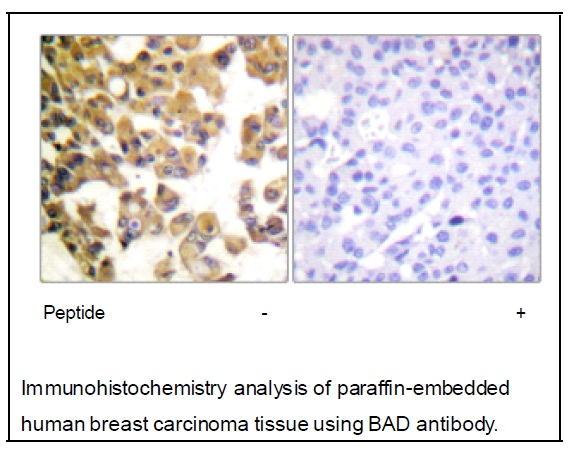 BAD Antibody (OAEC02003) in Human breast carcinoma cells using Immunohistochemistry