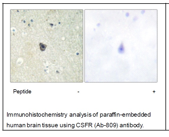 CSFR (Ab-809) Antibody (OAEC02014) in Human brain cells using Immunohistochemistry