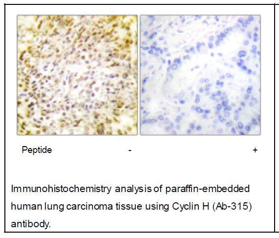 Cyclin H (Ab-315) Antibody (OAEC02018) in Human lung carcinoma cells using Immunohistochemistry