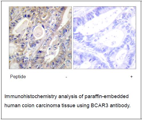 BCAR3 Antibody (OAEC02120) in Human colon carcinoma cells using Immunohistochemistry