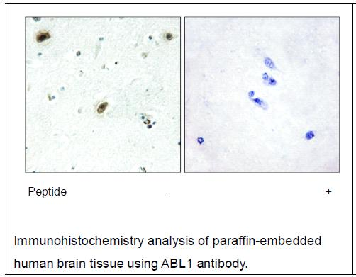 ABL1 Antibody (OAEC02153) in Human brain cells using Immunohistochemistry