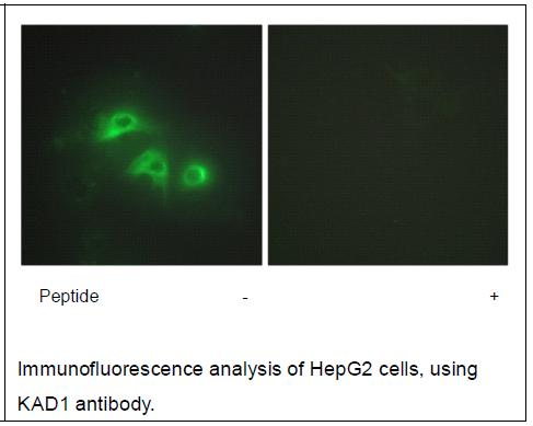 KAD1 Antibody (OAEC02156) in HepG2 cells using Immunofluorescence