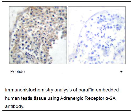 Adrenergic Receptor α-2A Antibody (OAEC02172) in Human testis cells using Immunohistochemistry
