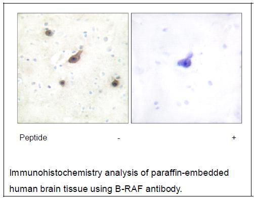 B-RAF Antibody (OAEC02196) in Human brain cells using Immunohistochemistry
