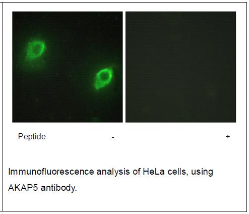 AKAP5 Antibody (OAEC02244) in Human Hela cells using Immunofluorescence
