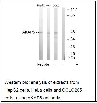 AKAP5 Antibody (OAEC02244) in HepG2 cells using Western Blot