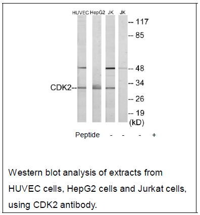 CDK2 Antibody (OAEC02245) in HUVEC cells using Western Blot