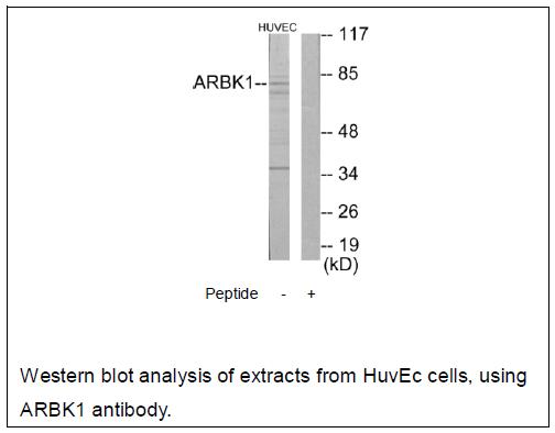ARBK1 Antibody (OAEC02246) in HUVEC cells using Western Blot
